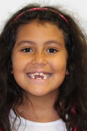 Young girl with gaps in smile before orthodontic treatment