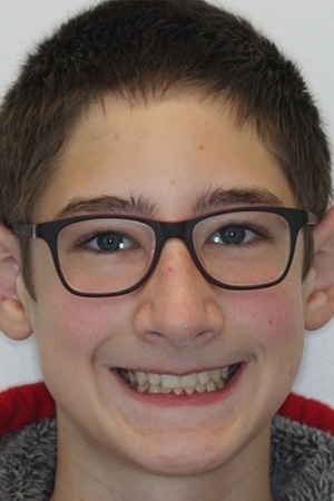Teen boy with gorgeous smile after braces