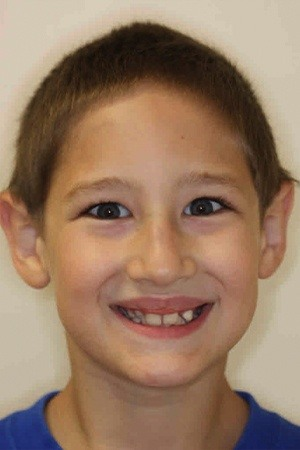 Preteen boy with misaligned smile before braces
