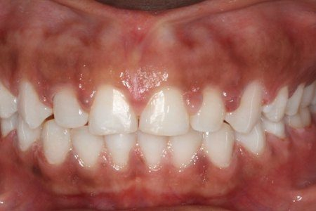 Closeup of perfectly aligned smile after orthodontics