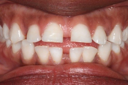 Closeup of smile with gaps between teeth before orthodontics