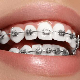 Closeup of smile with self ligating braces