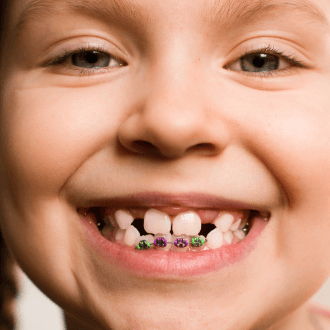 Closeup of child during pediatric orthodontic treatment