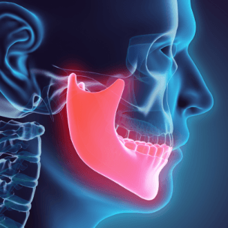 3 D animation of jaw and skull bone during dentofacial orthopedics